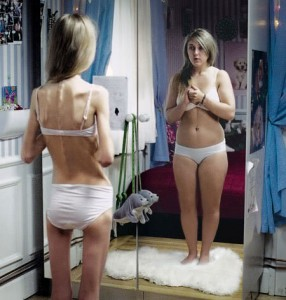 Anorexia is a psychological disorder related to impaired perception of body image.