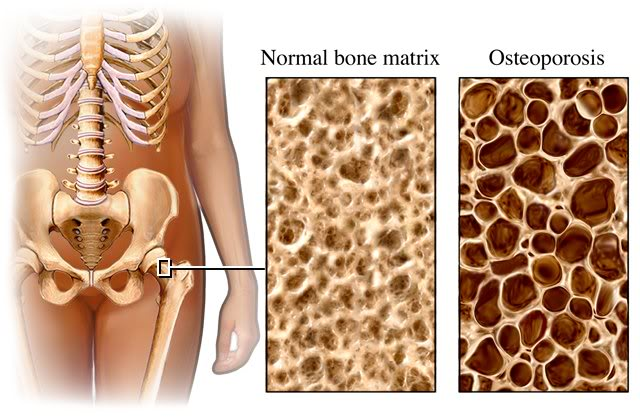 The bone mass and mineral density in early adulthood is maximal and declines gradually with age.