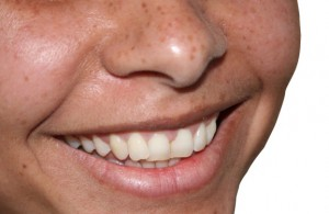 Dentures need to be cleaned in much the same way that natural teeth.
